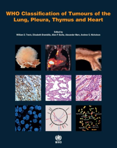 WHO Classification of Tumours of the Lung, Pleura, Thymus and Heart