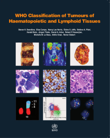 WHO Classification of Tumours of Haematopoietic and Lymphoid Tissues