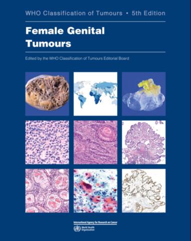 Female Genital Tumours