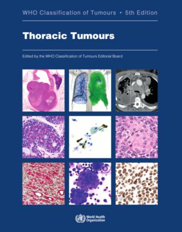 Thoracic Tumours